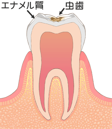C1[初期の虫歯]