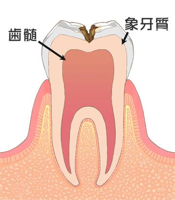 C2[象牙質の虫歯]