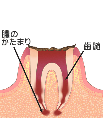 C4[末期の虫歯]